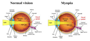 What causes nearsightedness?