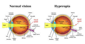 What causes farsightedness?