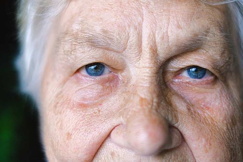 What is Ptosis?
